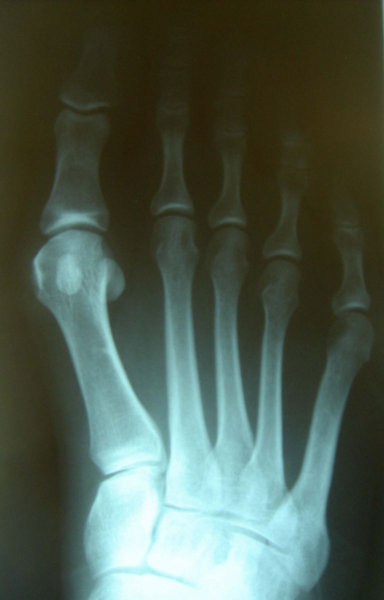 Bunions - an enlargement of the big toe joint